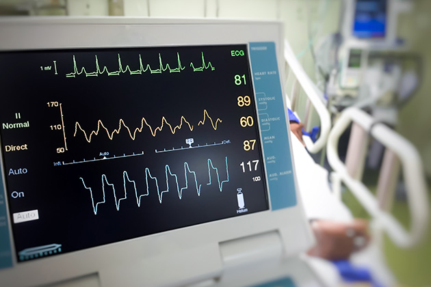Cardiac monitoring in the emergency department