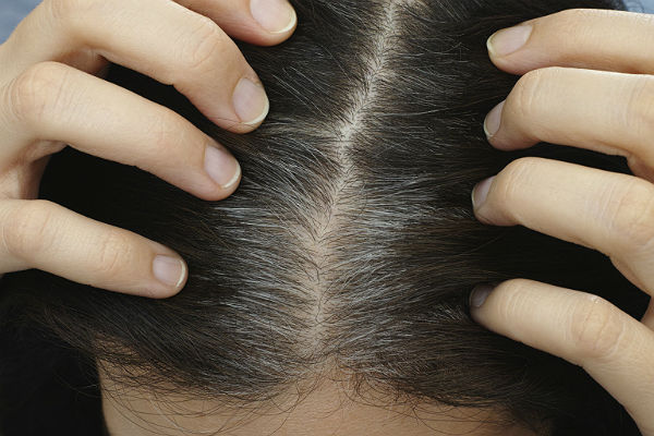 Gene study findings could one day prevent gray hair