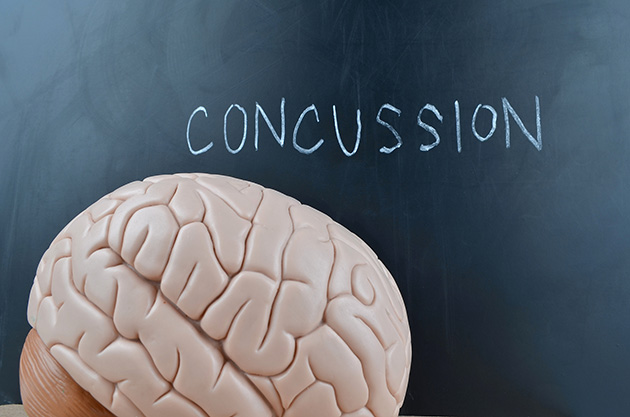 What educators need to know about concussions