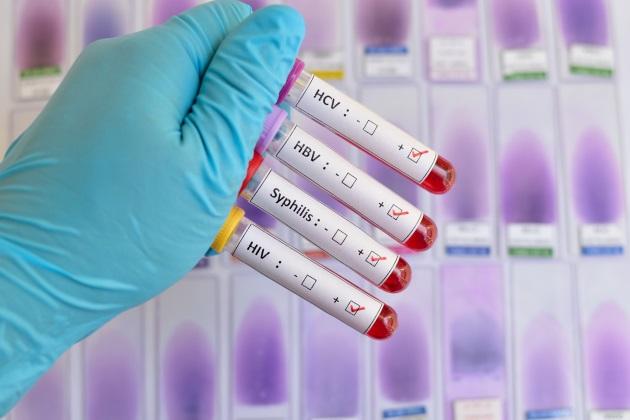 STDs: A public health crisis