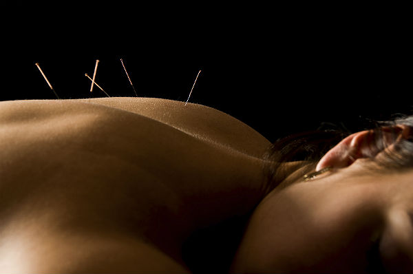 The ongoing debate on acupuncture for pain