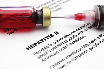 World Hepatitis Day: Learn more about this deadly disease