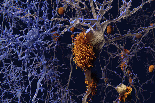Study shows decline in rate of Alzheimer's dementia