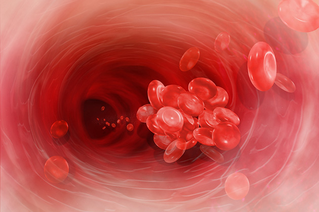 A technique to look inside dangerous blood clots