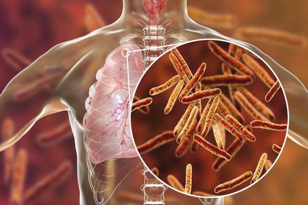 New approach to mapping tuberculosis paves way for new treatments