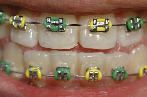 Multibrief online videos creating dangerous new trend of diy braces online videos creating dangerous new trend of diy braces solutioingenieria Gallery
