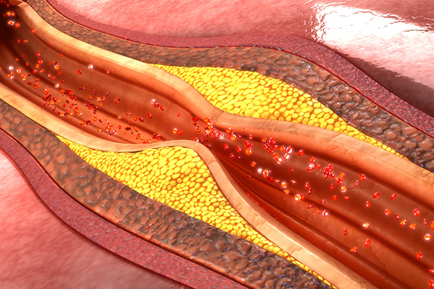 Using lasers to detect heart attack and stroke