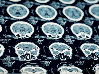 New study sheds light on presentation of CTE symptoms