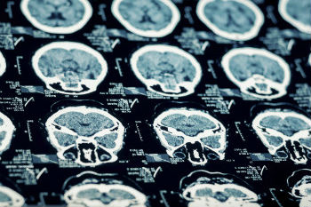 The link between TBI and neurodegenerative disorders