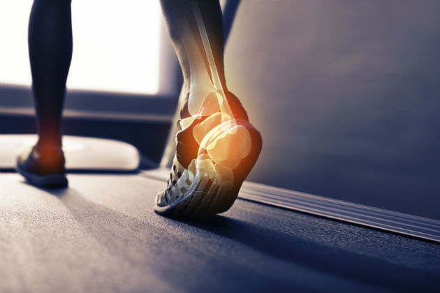 Running gait analysis: Not just about the feet